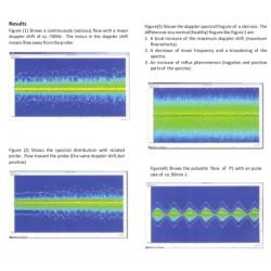 Scientech13E Sonografía Doppler
